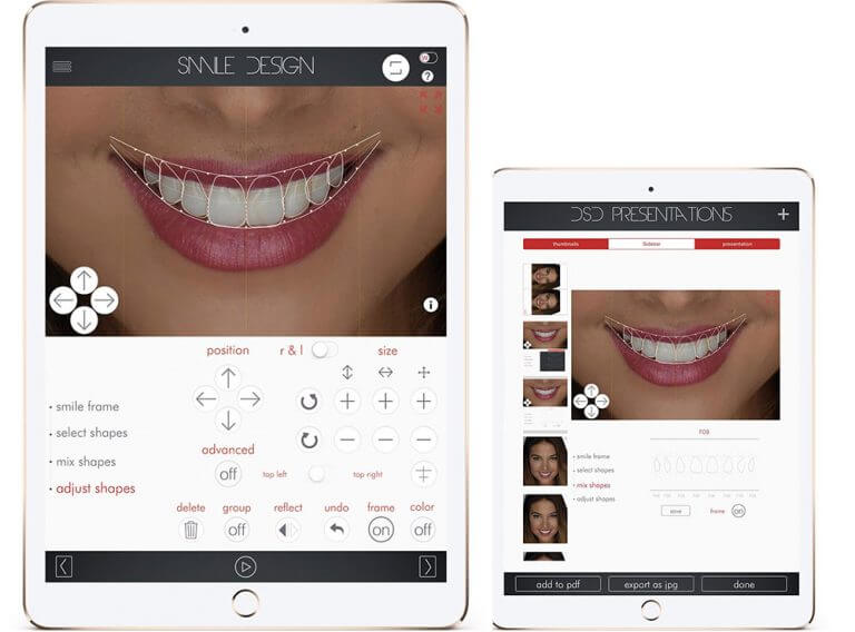 Design de Sorrisos (Digital Smile Design - DSD)
